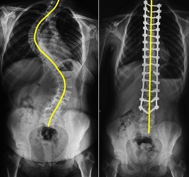 skolyoz-ameliyatinin-ayrintilari
