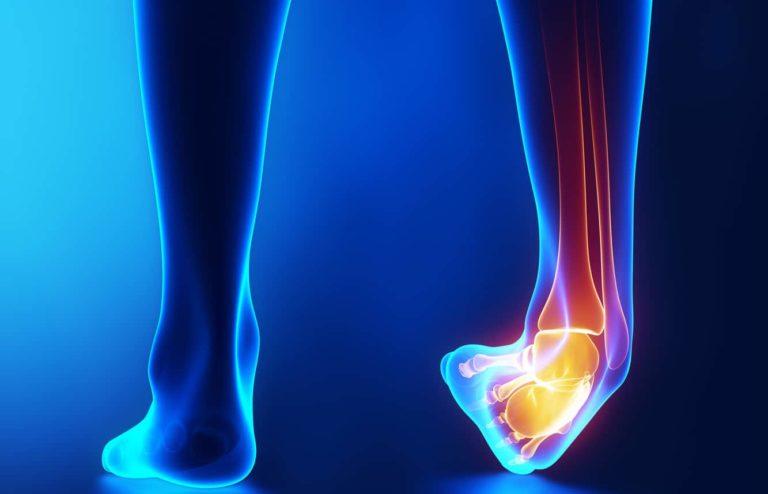 ayak bileği problemi